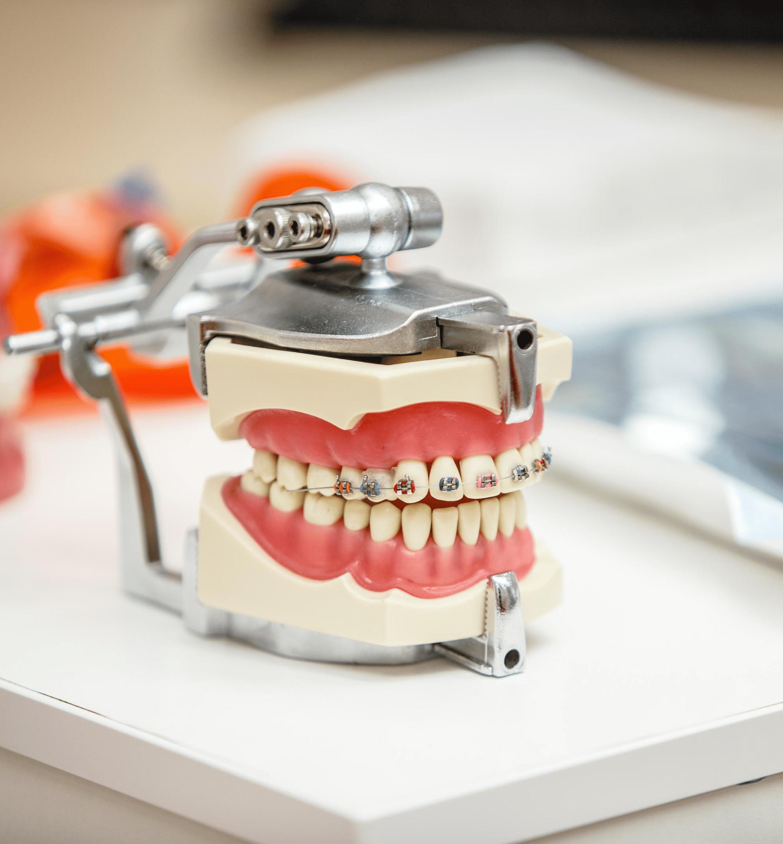 мастер модель зубов